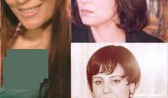 25 صورة نادرة لفنانين قبل وبعد الشهرة وعمليات التجميل .. لن تصدقوا الفرق!!