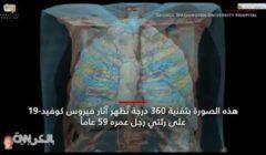«المريض يلهث من أجل التنفس».. كيف تبدو رئة مصاب بفيروس كورونا؟ (فيديو)