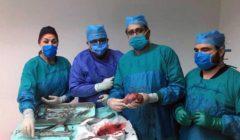 معهد ناصر: العمليات لم تتوقف.. وجراحة لإزالة ورم ضخم بالبطن لطفل اليوم
