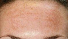 كل ما تريدين معرفته عن التصبغات الجلدية وكيفية التخلص منها