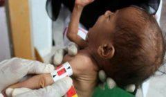 مسؤولة الشؤون الإنسانية في اليمن تحذّر من خطر مجاعة جديد